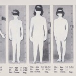 Intersex bodies photographed